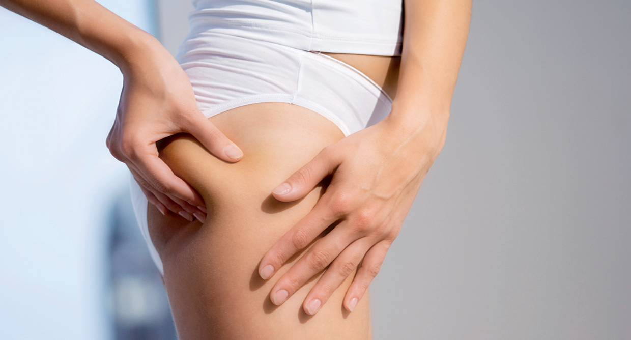 10 Things to know about Cellulite and the Cellfina Treatment